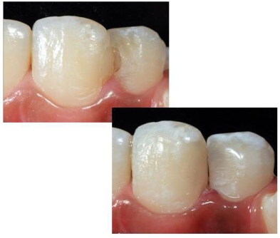 Anterior dental composite case  Teeth involved 11 and 21 (FDI)