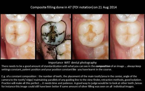 A series of images shot at different times during a single visit dental procedure